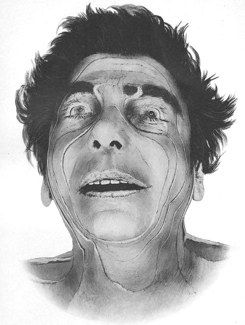 Man's face showing lines of incision.
