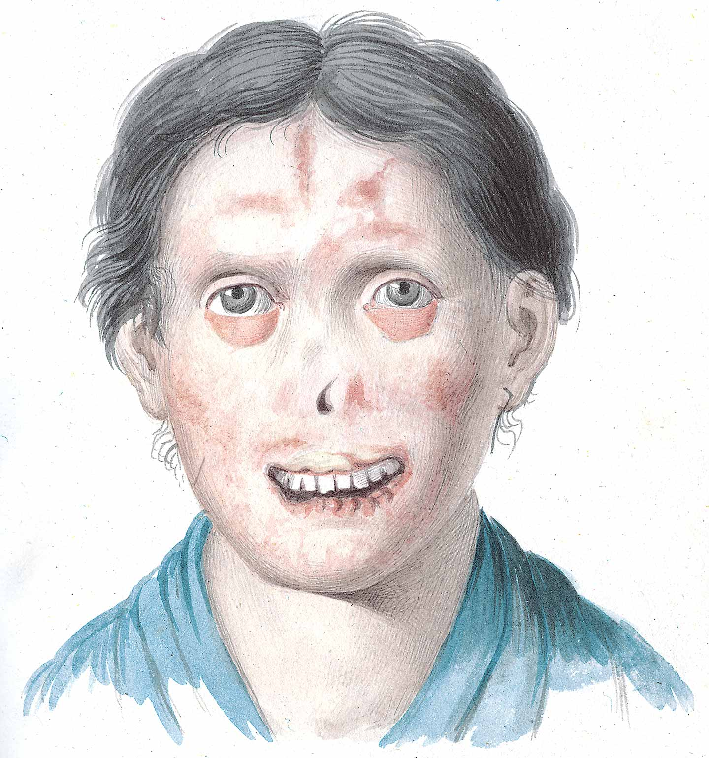 Woman with facial lesions.